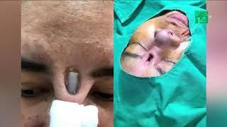 VTC14 | Đi nâng mũi, thiếu nữ bị sụn Silicon đâm thủng sống mũi