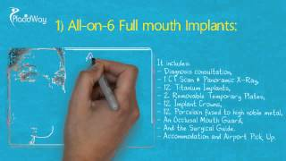 Watch Video World Class All-on-6 Dental Implants in Los Algodones Mexico