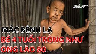 (VTC14)_Mắc bệnh lạ, bé 4 tuổi trông như ông lão 80