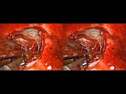 visionsense 3d endosocopic craniopharyngioma_SBS