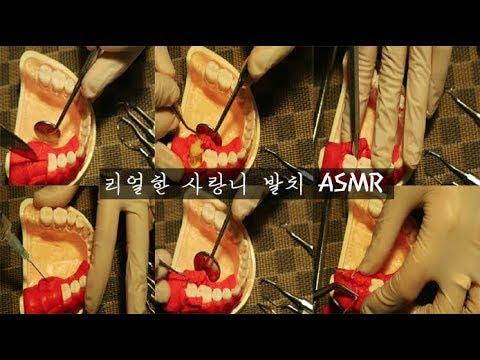 [LEEBOM ASMR] 리얼한 사랑니 발치 RP