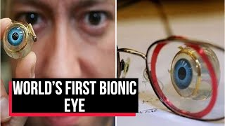 World's first bionic eye to fully restore vision in blind ..