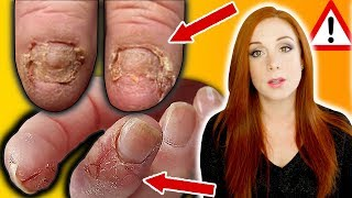 BREAKING NEWS - NAIL ALLERGIES, YOUR SERIOUS RISKS & HOW TO STOP THEM