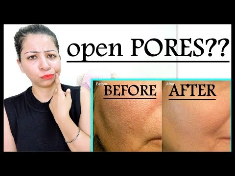 Home Remedies for Open Pores | How to Get Rid of Large/Open Pores