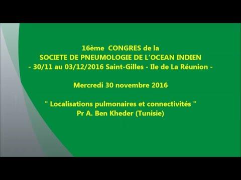 Localisations pulmonaires et connectivités. Pr A Ben Kheder Tunisie