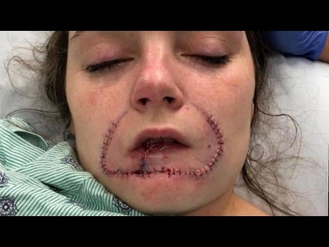 Woman Gets Surgery to Restore Lip Her Ex-Boyfriend Bit Off