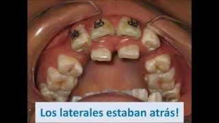 Caso consultorio dental del dr beckett
