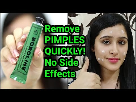 Remove PIMPLES & ACNE IN 3 DAYS | NATURAL & EASY METHOD