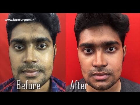 Best Plastic Surgery Results Ever! - Dr. Sunil Richardson