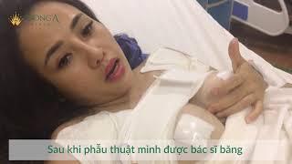 Nhật ký nâng ngực tại Đông Á - Trăng Thơ