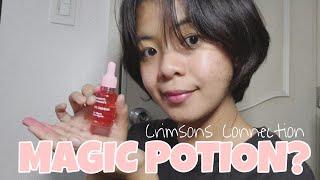 Magic Potion Crimsons Connections Shopee Review