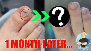 DID THE NAIL SPLIT HEAL??? FOOT HEALTH MONTH 2018 #19