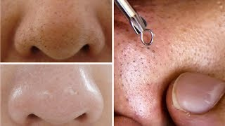 How To Do Facial Clean Up At Home Step By Step For Spotless, Clear Skin Rabia Skincare
