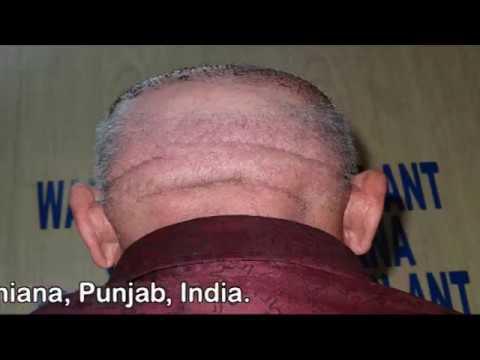 Hair Transplant of 85 year Old Man