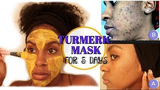 I Used a TURMERIC MASK for 1 Week and THIS HAPPENED! | How to Fade Dark Spots