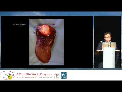 MTP09.2 Robotic Liver Surgery