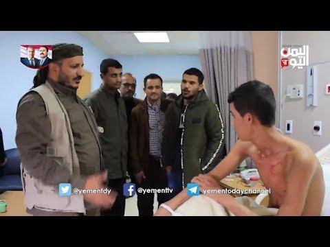 العميد الركن طارق صالح يزور جرحى المقاومة الوطنية