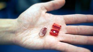 Un robot origami pour récupérer les piles boutons avalées