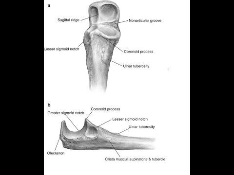 Olecranon Osteotomy Approach