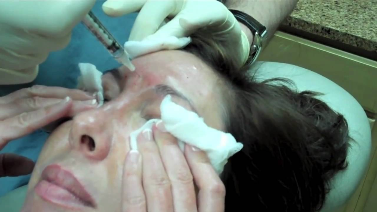 Dysport Injection to frown lines, forehead, crows feet, lower lids and nose bunny lines - YouTube