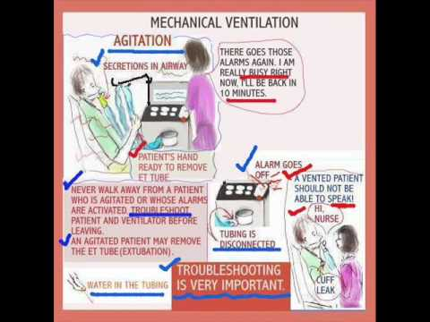 Sessions For Nurses 44 The Patient On Mechanical