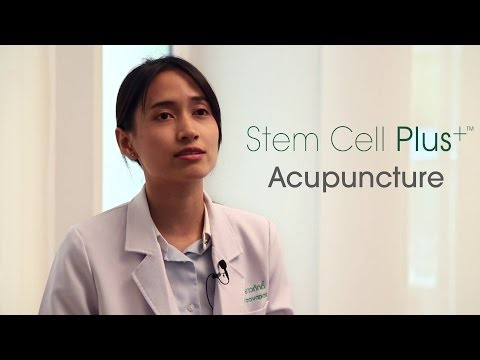 Acupuncture | Beike Stem Cell Plus+™