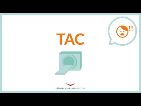 La TAC espone a molte radiazioni? È un esame necessario?