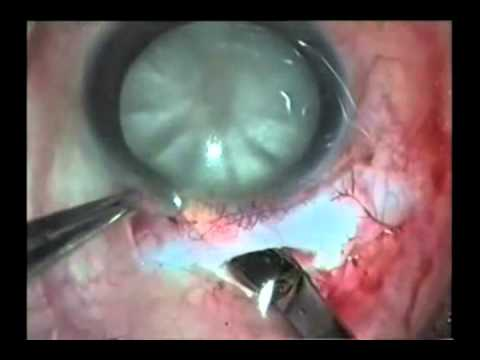 Panaoramic View of Various Surgical Techniques in Managing Mature and Hypermature Cataracts