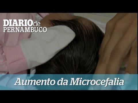 Surto de Microcefalia faz gr�vidas procurarem orienta��o em hospitais
