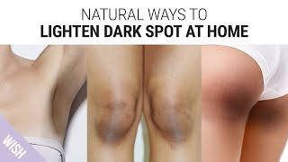How To Lighten Dark Underarms, Knees & Elbows | Skin Brightening Tips for Dark Skin