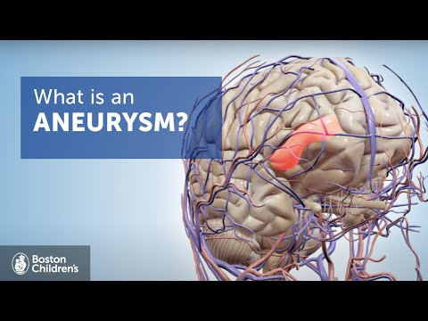 Brain Aneurysms | Boston Children's Hospital