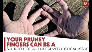 Your pruney fingers can be a symptom of an underlying medical issue