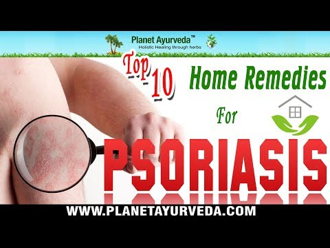 10 Best Home Remedies For Treating Psoriasis Symptoms - Ayurvedic Cure