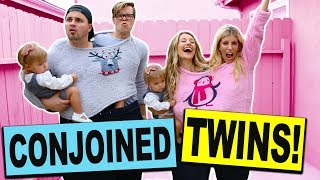 Conjoined Twins Dance Battle Challenge with Real Twin Babies  (Boys vs Girls) *Most Adorable*