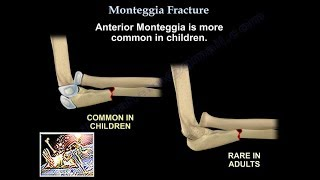 Monteggia Fracture - Everything You Need To Know - Dr. Nabil Ebraheim