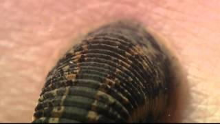Shape of Life: Annelids - Leeches