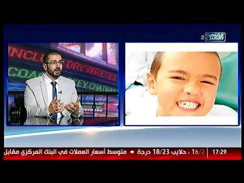 الناس الحلوة | أسباب الجز على الأسنان وطرق علاجها مع دكتور مراد ناشد