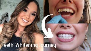 My Teeth Whitening Journey | during COVID | Zoom Nite White