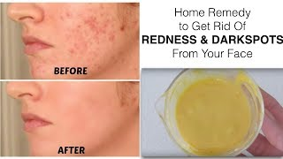 Home Remedy to get rid of REDNESS or RED SPOTS from your face || Mamtha Nair