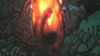ナヌカザメの卵2