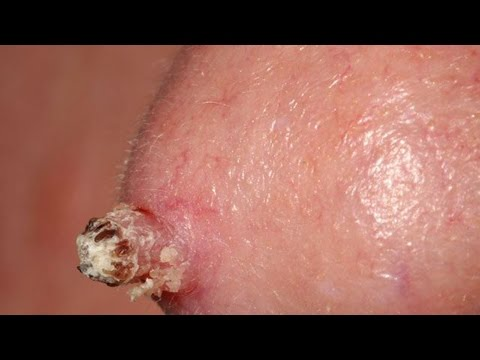 What Genital Warts Look Like: Symptoms and Removal