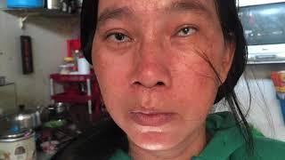 HOA TRÊN ĐÁ số 06 - Bé Hoàn Minh, bị tai nạn giao thông, cha mất, mẹ bị mờ mắt, cuộc sống bế tắc
