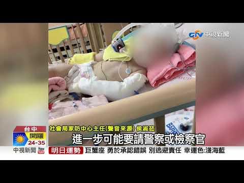 又傳虐童? 1歲童腦出血 母:不排除拔管│中視新聞 20190623