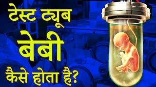 Surrogacy कृत्रिम गर्भाधान | Test Tube Baby Process | IVF Treatment in Hindi - Daily Health Care