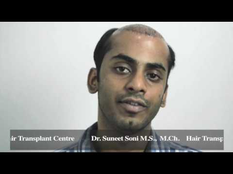 Best Hair Transplant in India Jaipur - Delhi   USA   UK