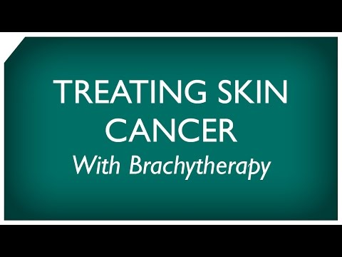 Brachytherapy for Skin Cancer