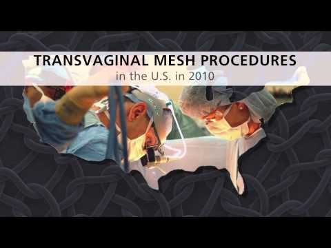 Vaginal Mesh Complications Explained