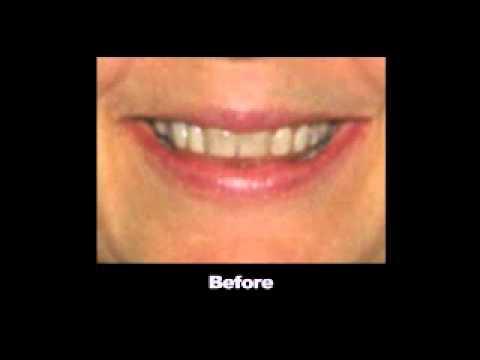 Cosmetic Dentist Sugar Land TX - Call (281) 402-8878 Cosmetic Dentist in Sugar Land