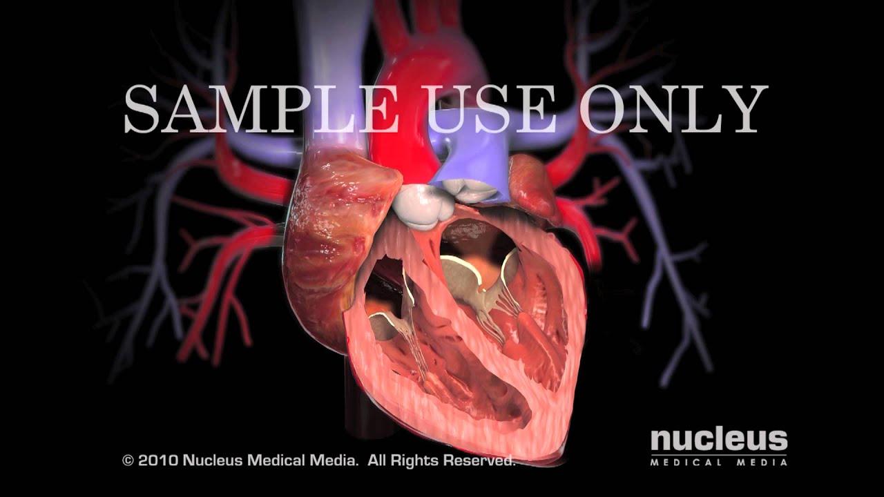 Heart Surgery - Magazine cover