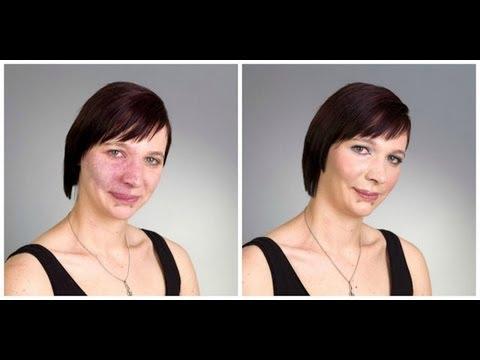 How To Cover Birthmark Acne Scars Vitiligo Tattoo